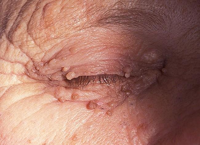 fibromy